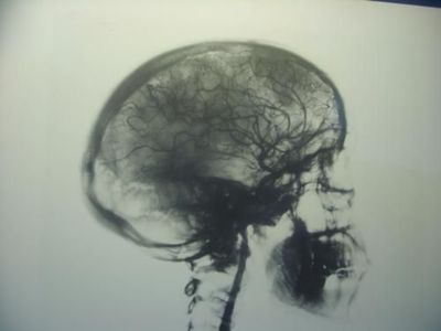 black and white, brain, photo, skull, xray