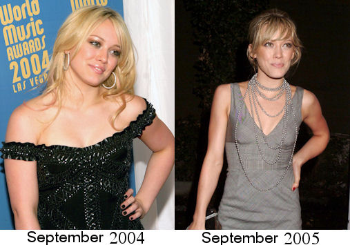 anorexia, anorexic, beautiful, beautiful in 2004, before after