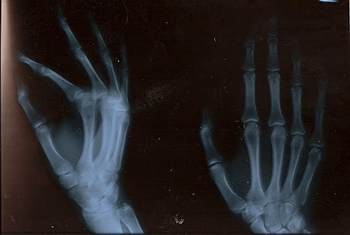 bones, hands, hospital, photograph, picture, x-ray